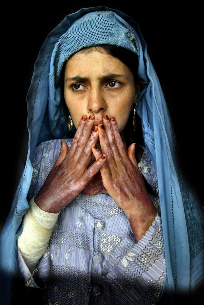 An Afghan woman with severe burns on 45% of her body from self-immolation shows her scars at a hospital in Herat.