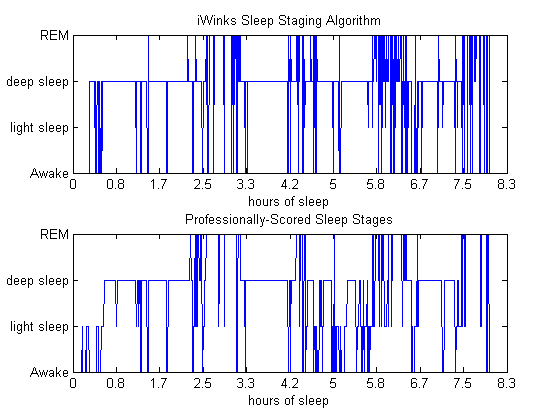 Our algorithm tracks sleep stages the same way a human expert would.