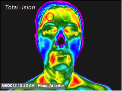 Thermal imaging helps show that your nose doesn't just feel colder.  It is.