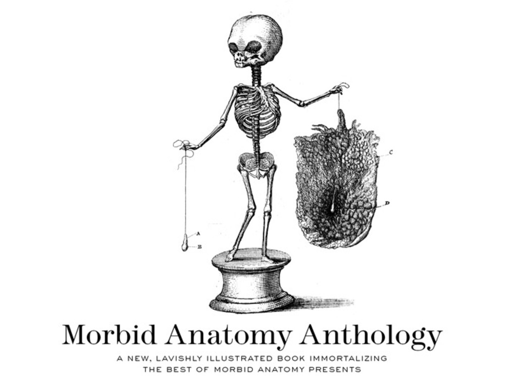 Morbid Anatomy Anthology's video poster